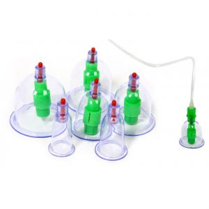 vacuum cupping